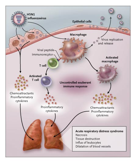 Respiratory distress caused by cytokines