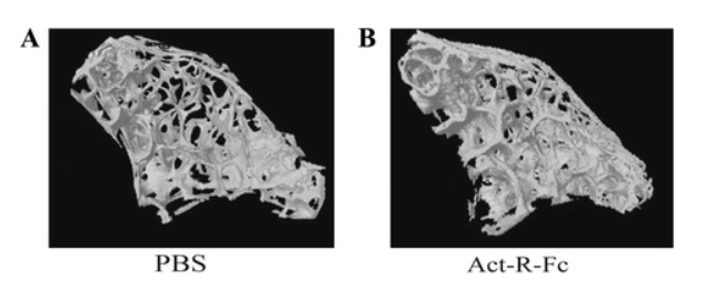 Image showing bone density of vertebrae in controls (A) versus mice given ACE-031 (B). There is a significant difference in bone mass.