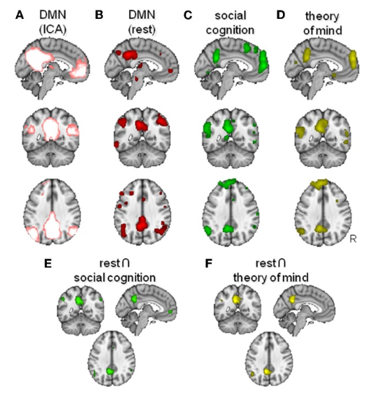 Image showing the overlap of activation between the resting mode network and parts of the brain responsible social cognition.